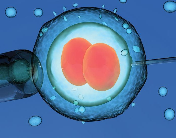IVF TREATMENT: EMBRYO TRANSFER
